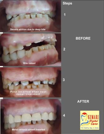 Best Dental Clinic in Lalitpur | Cosmetic Dentistry | Dental